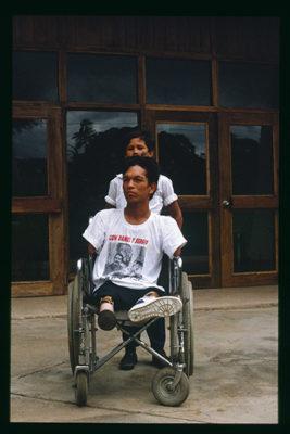 Mutilat de Nicaragua, a Managua el febrer de 1990. Fotografia: F.L. del Pino Olmedo.